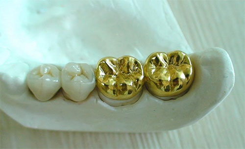 Full metallic dental crown