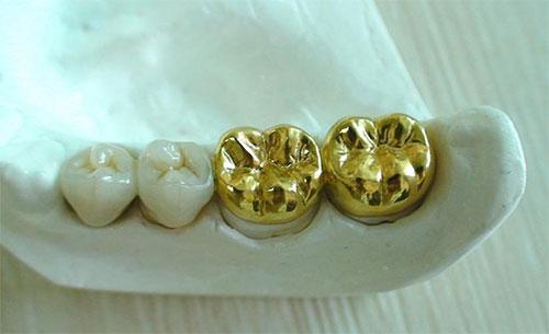 التاج المعدني للأسنان