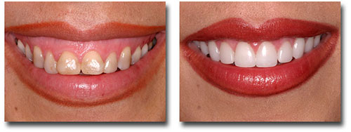 Gum Smile Treatment