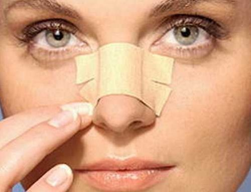 Nose Taping after rhinoplasty