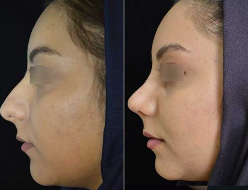 Rhinoplasty (Fleshy Nose)